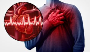 Symptoms and Causes of Heart Valve Disease - Brookhaven Heart, New York: Patchogue, New Hyde Park, and Hicksville